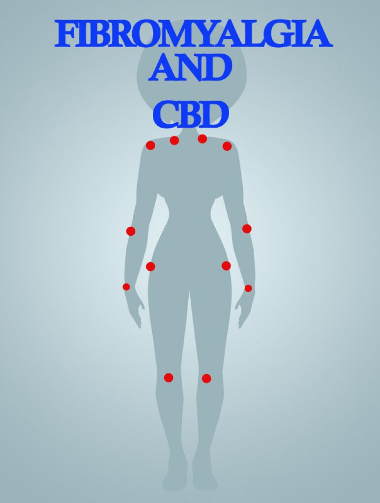 Fibromyalgia and CBD Oil